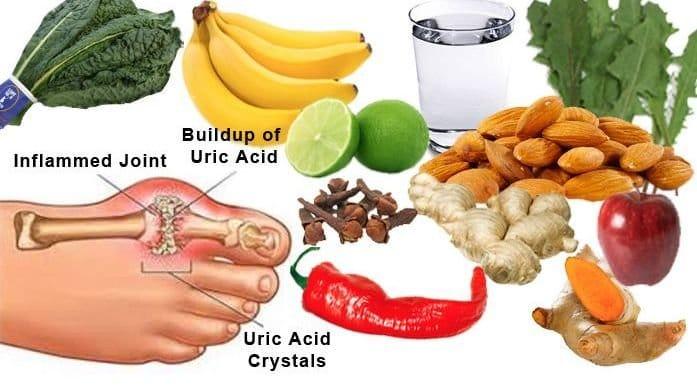 remedio casero para eliminar el acido urico ataque de gota en los pies acido urico tratamiento omnilife
